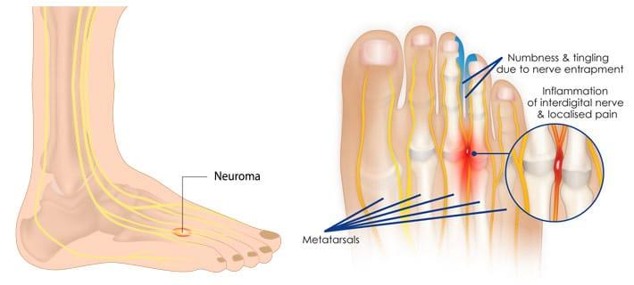 No dedos perto dos pé dor inchaço