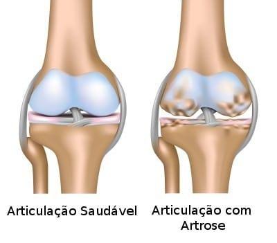 articulacao com artrose