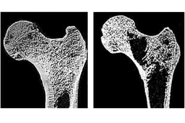 diagnostico de osteoporose