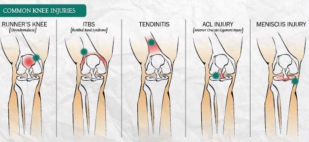 Dor em joelho: Síndrome da dor femoropatelar - Clínica Dr ...