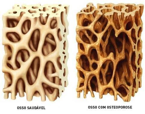diferenca osso saudavel e osteoporose
