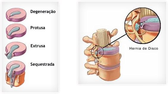 hernia de disco acupuntura