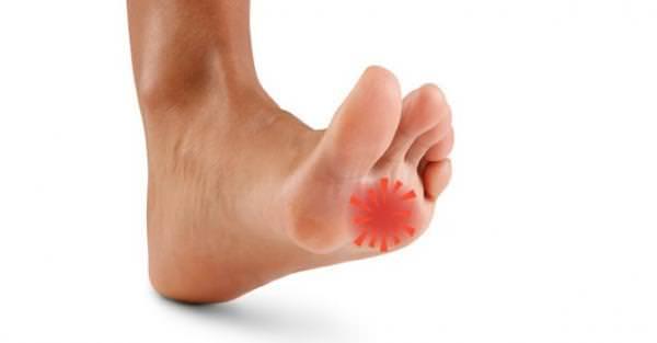 Dos nos pés nervos localização