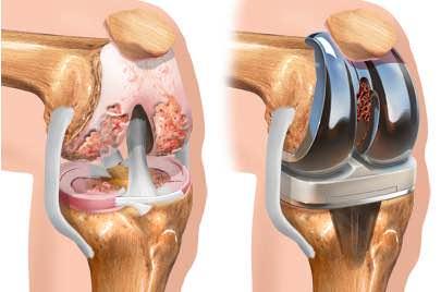 protese osteoartrose joelho