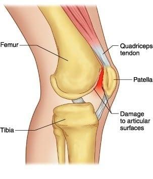 sindrome femoropatelar joelho