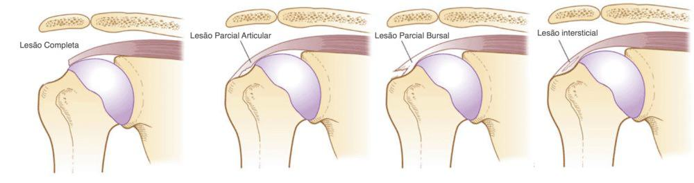 sintomas dor manguito rotador