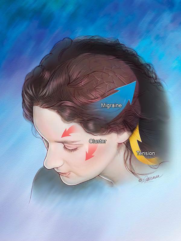 tipos de cefaleias