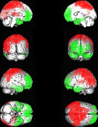 fibromialgia spect pesquisa