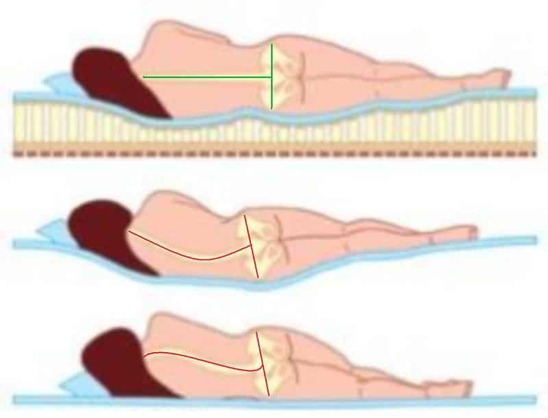 melhor colchao pra coluna vertebral