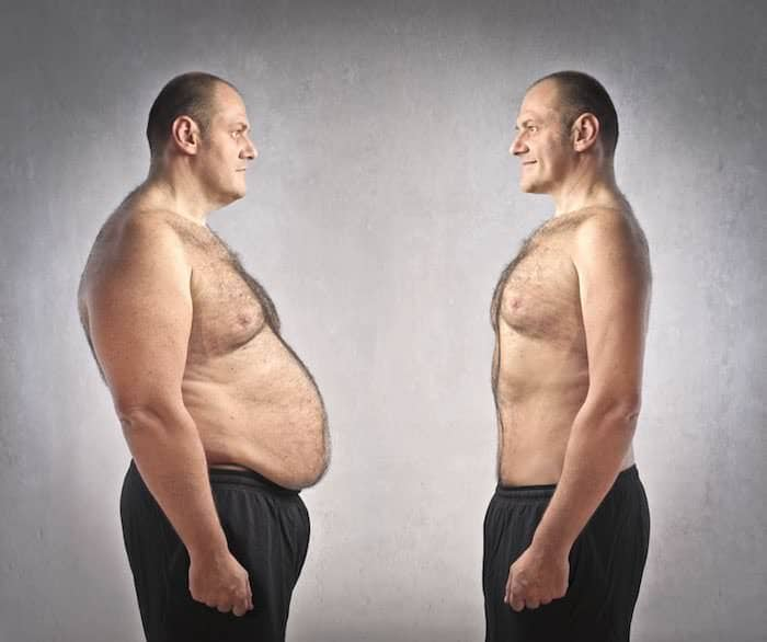alteracoes na coluna vertebral devido obesidade e dor