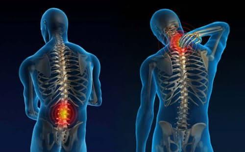 os maiores viloes da coluna vertebral