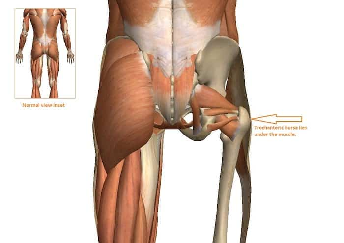 anatomica da bursite trocanterica