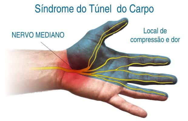 aprenda mais sobre a sindrome do tunel do carpo