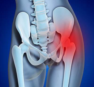 area de dor e inflamacao da bursite trocanterica