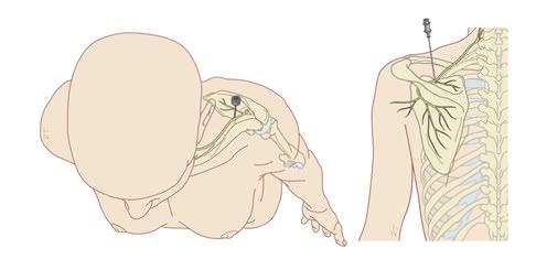 bloqueio de nervo supraescapular medico fisiatra