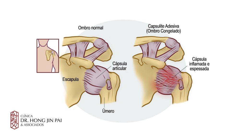 Dor no ombro Capsulite Adesiva