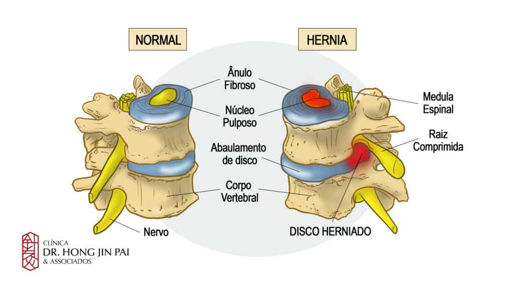 disco normal e hernia de disco na coluna