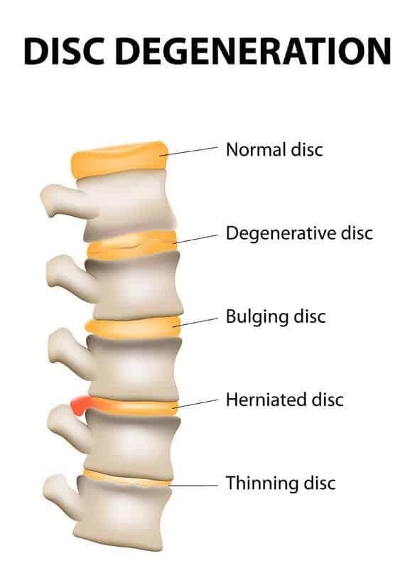 doenca degenerativa do disco tratamento coluna vertebral