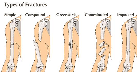dor por fratura ossea