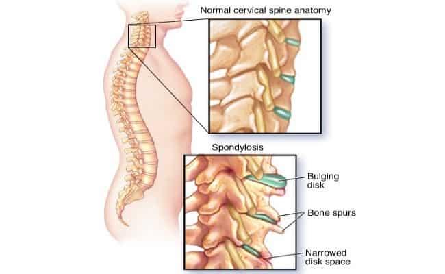 espondilose coluna vertebral