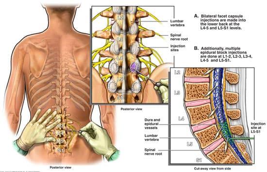 infiltracao fisiatria para lombalgia e dor lombar