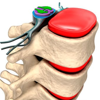 lombalgia trauma hernia de disco