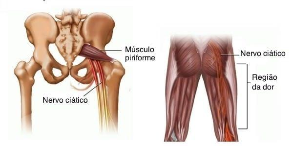 Na interna dor coxa direita da virilha parte perto da