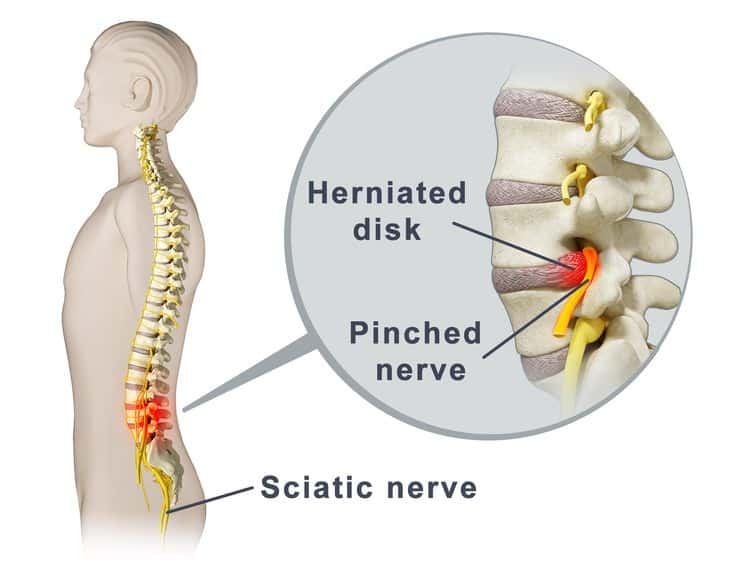 súbita dor elétrica nas costas