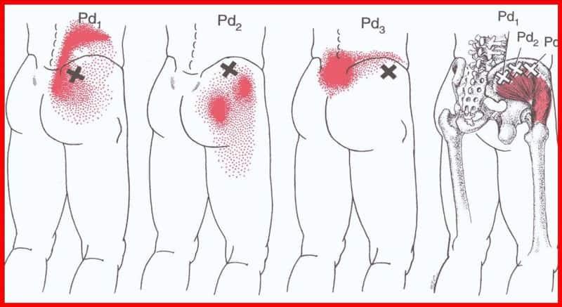 pontos gatilhos dor sacroiliaca miofascial