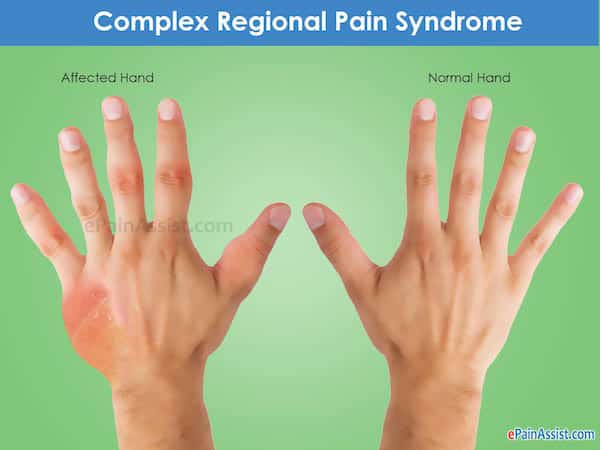 sindrome complexa de dor regional