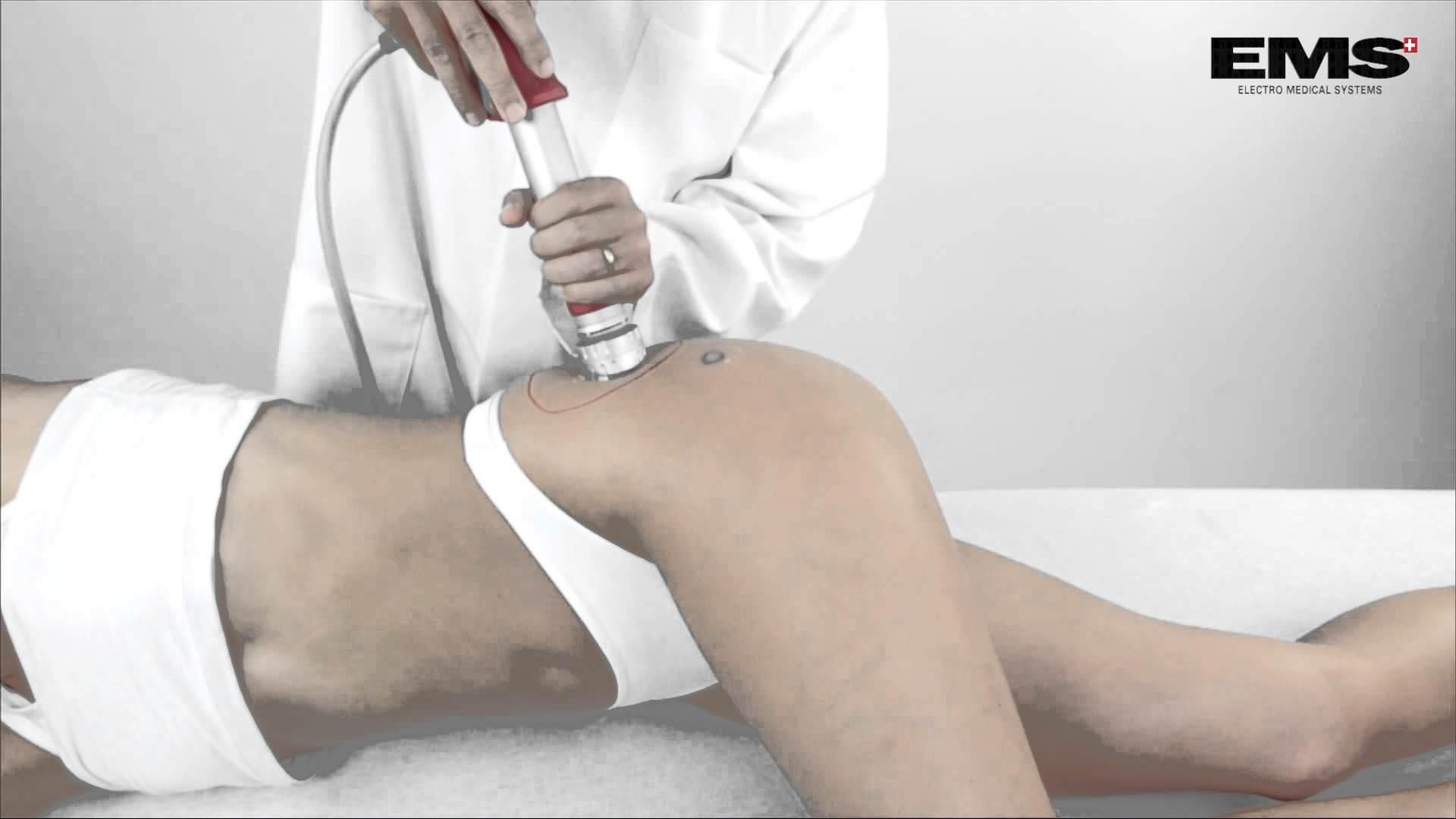 terapia por ondas de choque para bursite trocanterica