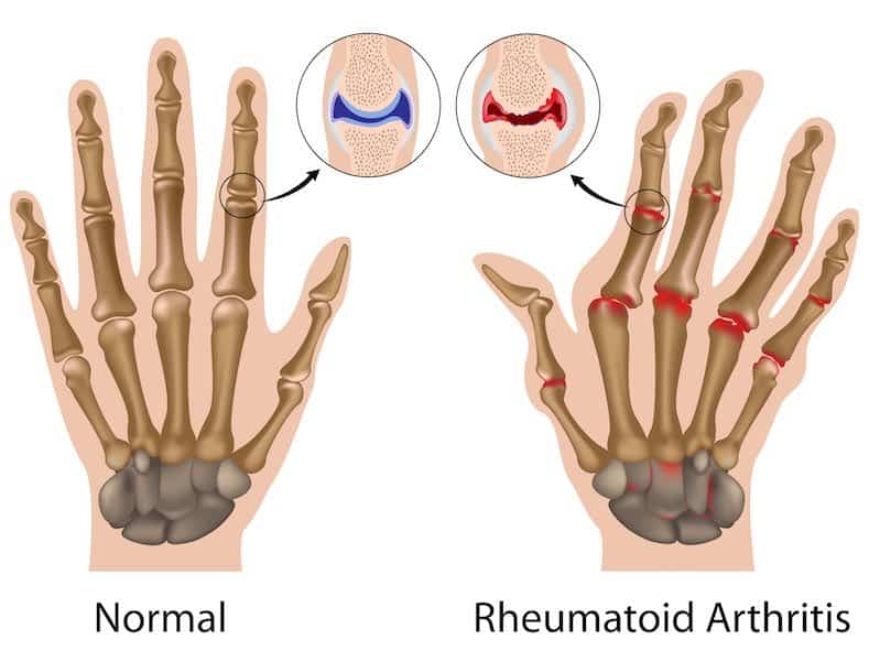 articulacao maos com artrite reumatoide
