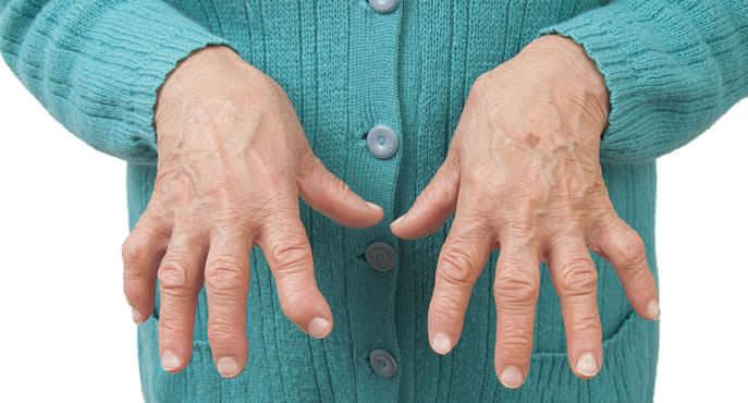 articulacoes artrite reumatoide maos