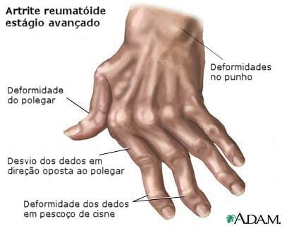 estagio artrite reumatoide avancado