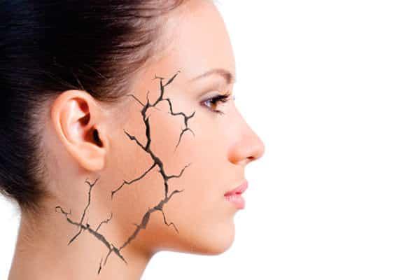 neuralgia do trigemeo
