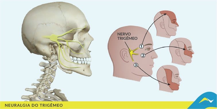neuralgia-do-trigemeo