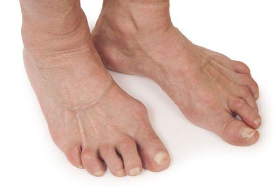 pes com artrite reumatoide