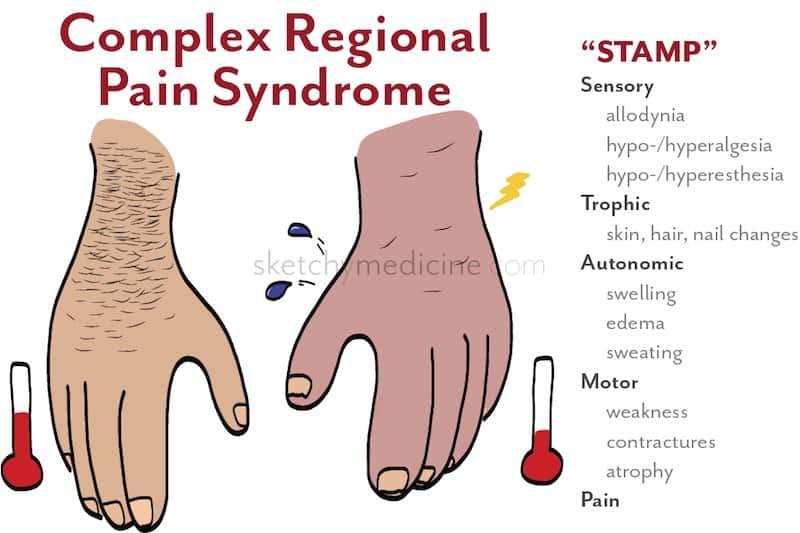 sindrome complexa de dor regional esquema