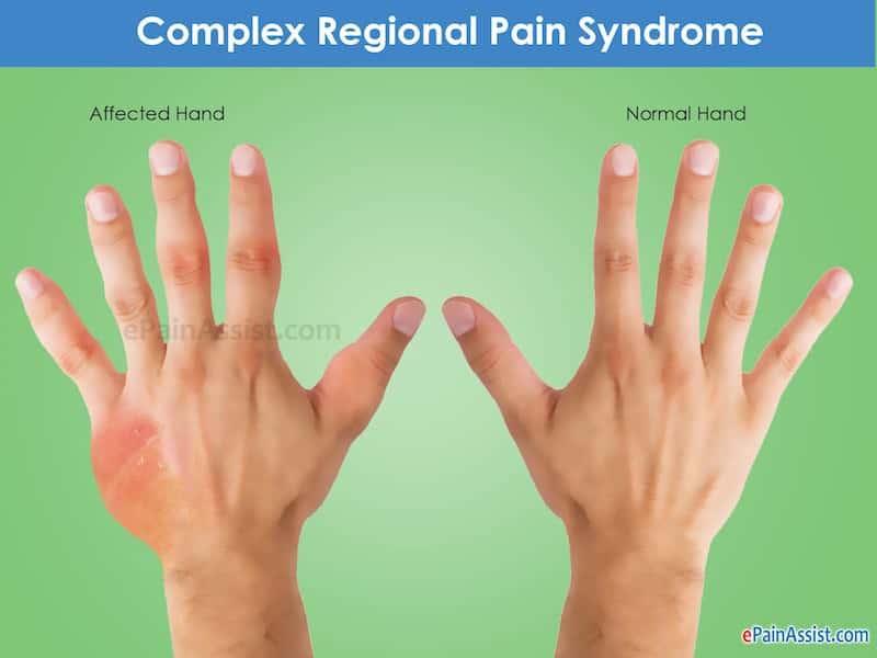 sindrome complexa de dor regional o que e