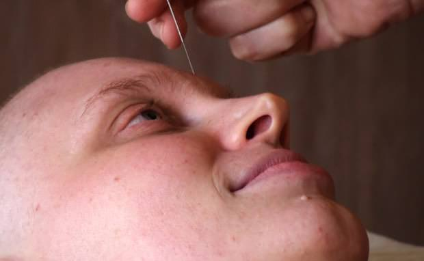 acupuntura no tratamento de xerostomia