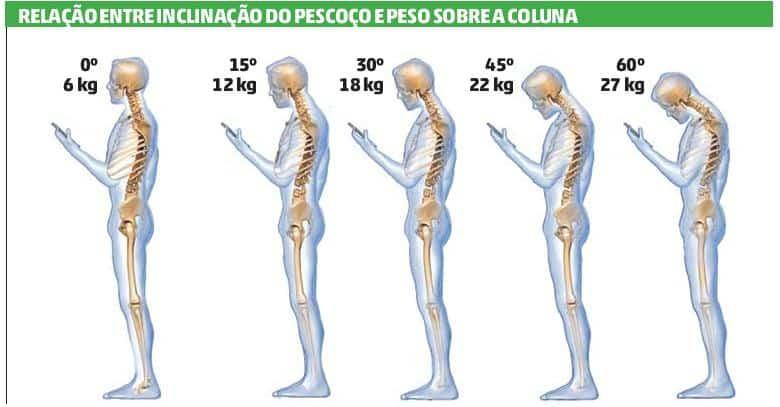 inclinicacao do pescoco e problemas na coluna
