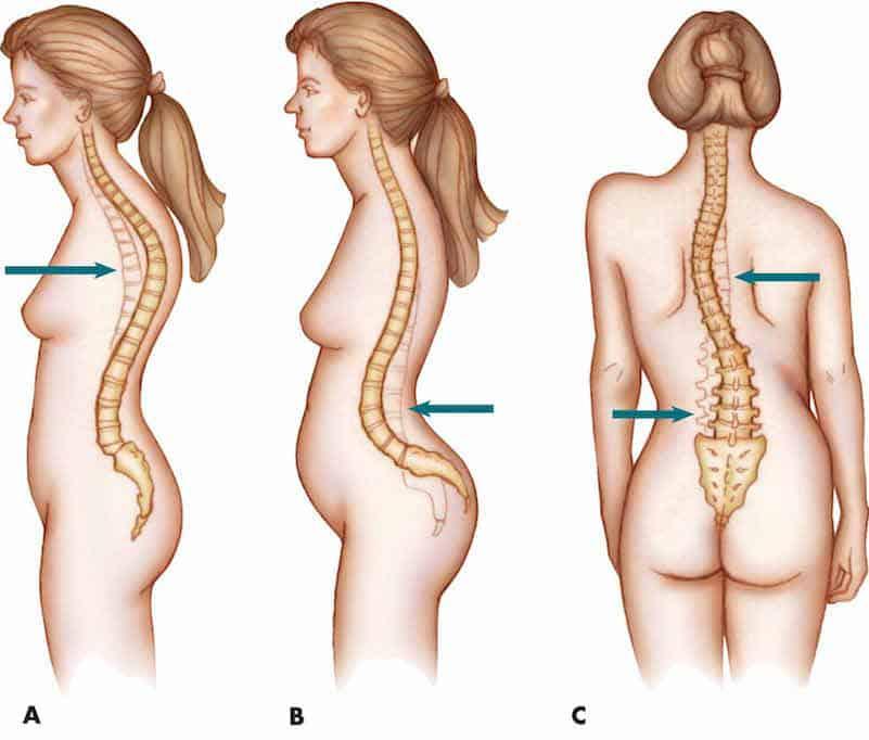 postura anormal cifose escoliose