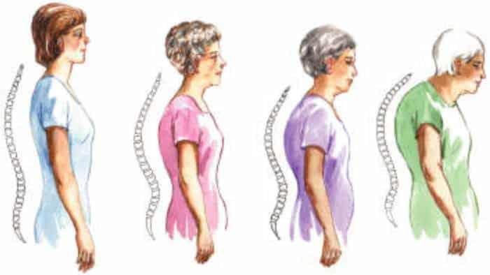 postura com a idade cifose