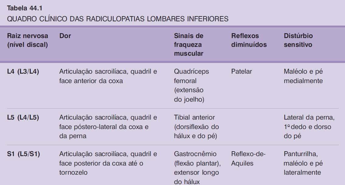 radiculopatias