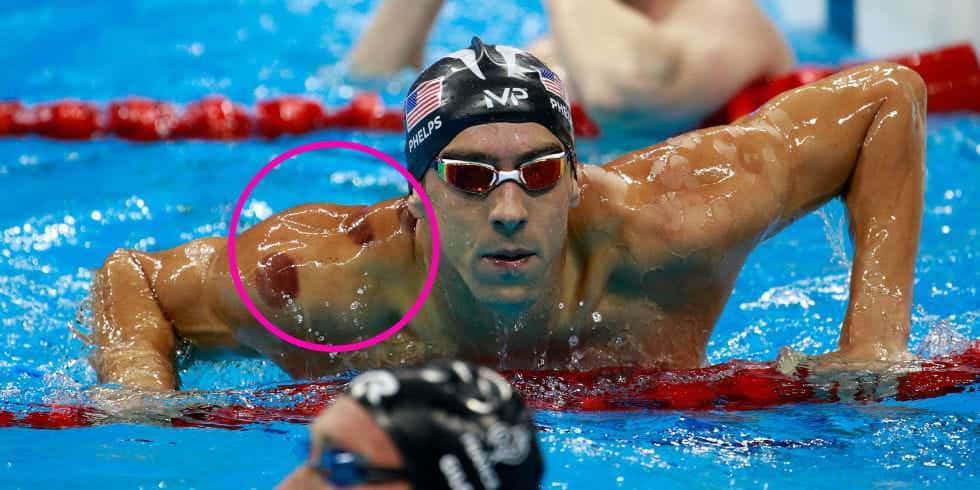 michael phelps ventosaterapia