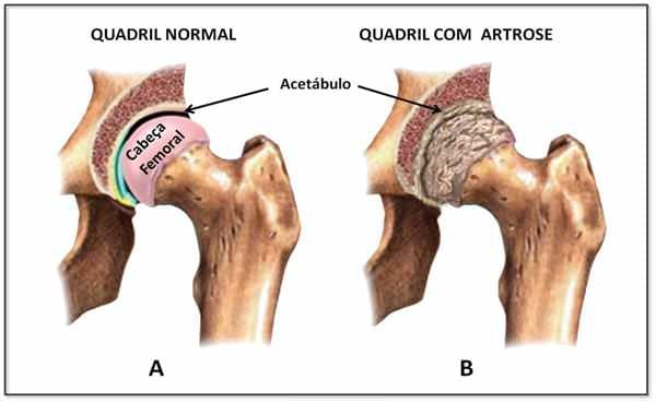 quadril-com-artrose-osteoartrite