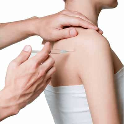 agulhamento-seco-dry-needling-trigger