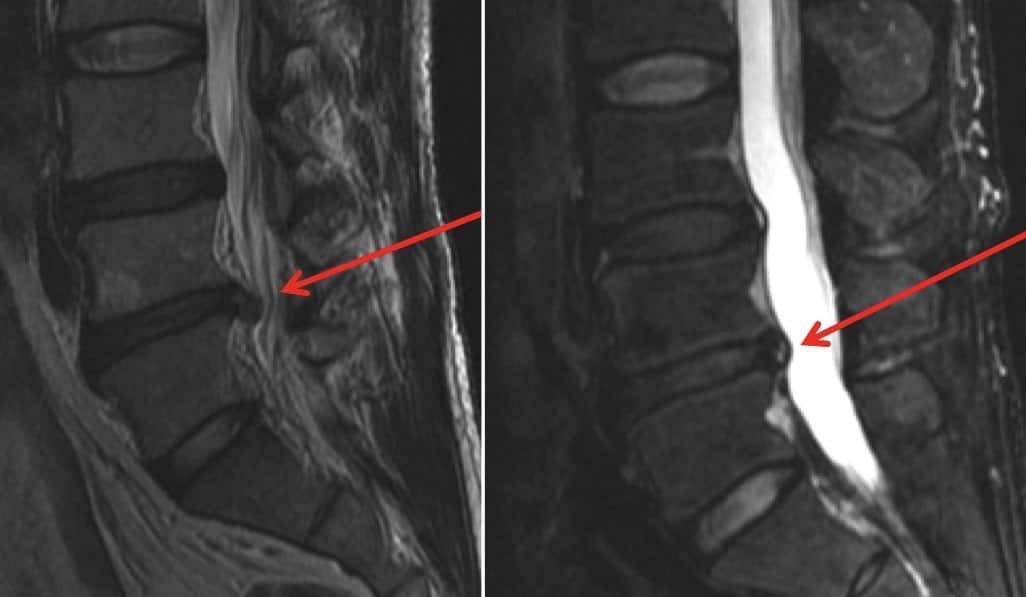 diagnostico-hernia-de-disco