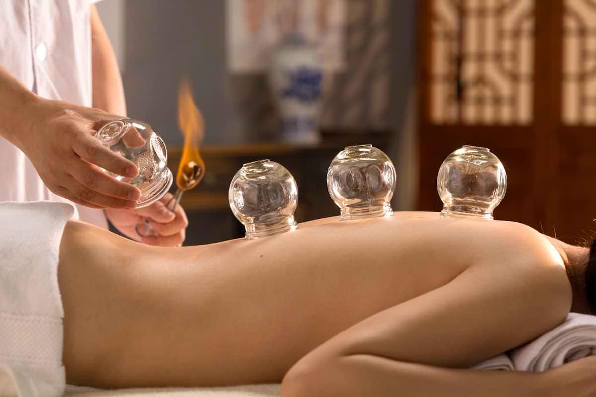 acupuntura-ventosaterapia-medicina-chinesa