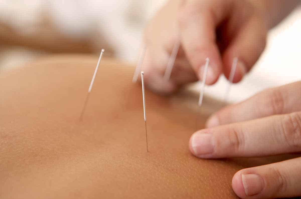 analgesia-acupuntura